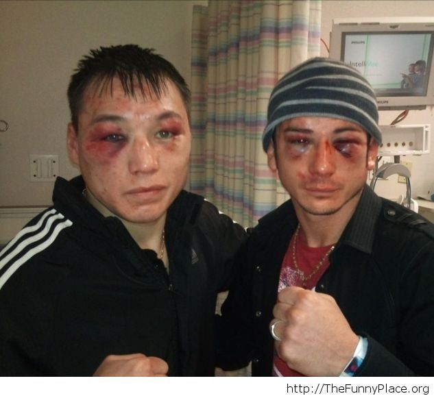 Two boxers after a fight
