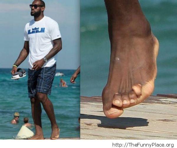 Weird toes